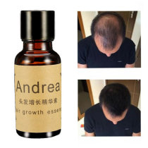 Fast Hair Growth Essence Liquid Pilatory For Men And Women 20ml