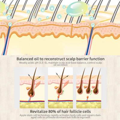 Sevich 30ml Hebal Essence Fast Hair Growth Spray Hair Loss Treatment Help for hair Growth Hair Care