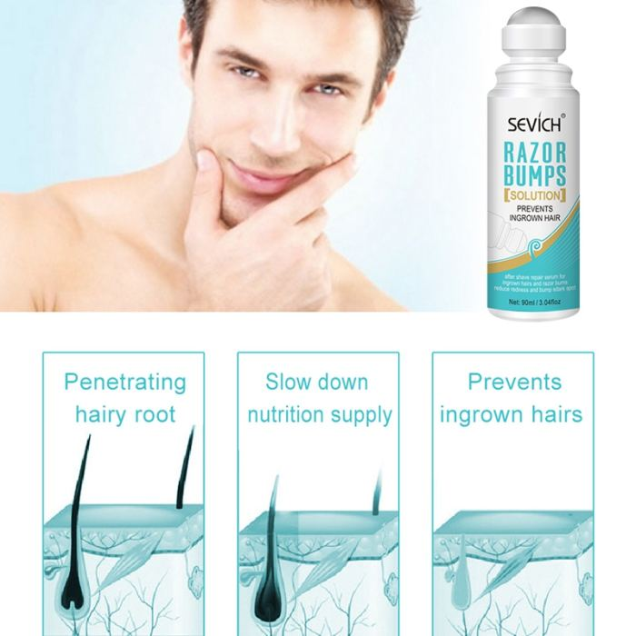 Sevich 90ml Hair Removal Cream Razor Bump Stop Ingrown Hairs treatment After Shave Repair dark spot Serum